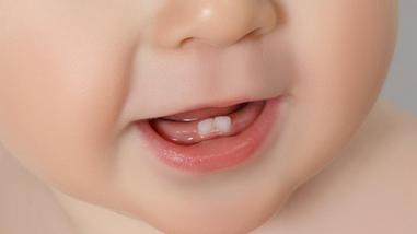 Nascimento dos dentes do bebê – como aliviar os sintomas - Nascimento dos dentes do bebê – como aliviar os sintomas
